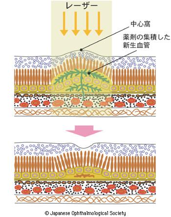 加齢黄斑変性症 レーザー治療